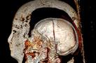 Egyptian Mummy's Curse: Oldest Heart Disease Case | Ancient Health & Medicine | Scoop.it