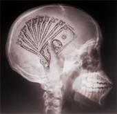 Raúl Arrabales Moreno » ¿Puede explicar la crisis la neuroeconomía? | Social Neuroscience | Scoop.it