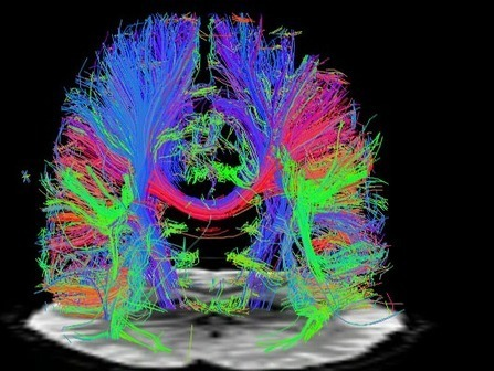 Scientists May Have Found A Way To Bring Back Memories Of Dementia Patients   Social Neuroscience Advances   Scoop.it