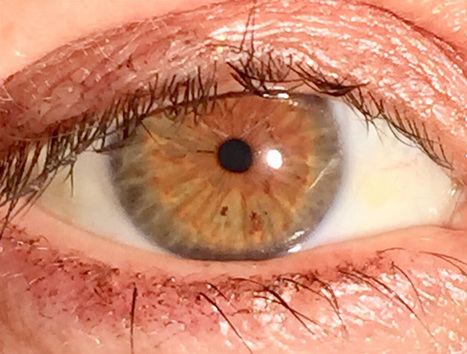 Surgery That Changes Eye Color | How To Change ...