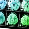 Neuroscience in the news
