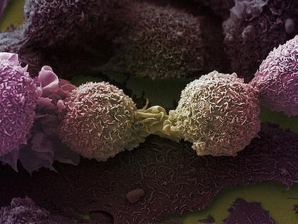 En vidéo : en immersion dans un laboratoire de lutte contre le cancer | Alimentation et Santé, Trust on Science ! | Scoop.it