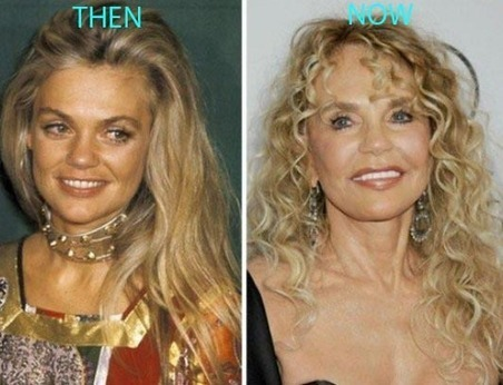 Dyan Cannon Plastic Surgery Before And After Ph