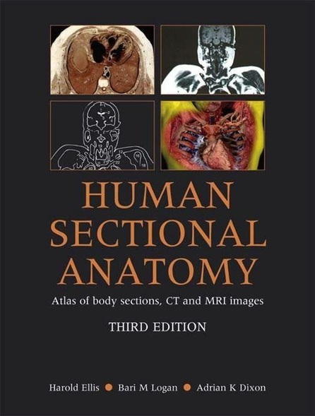 Netters Atlas Of Human Anatomy 6th Edition Pdf