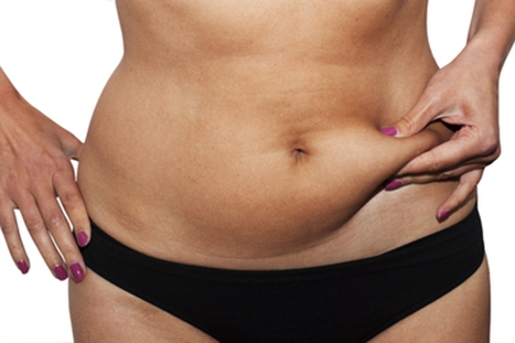 Belly Fat and Cellulite Realities and Remedies | Health and Fitness | Scoop.it