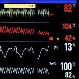 Le C-Pulse, un nouveau dispositif cardiaque   À Votre Santé   Scoop.it