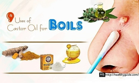 Stop Vaginal Itching With Home Remedies Bacte