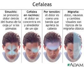 Migraña, cefaleas y otros dolores de cabeza.: Fitoterapia y cefaleas. | Vida sana | Scoop.it