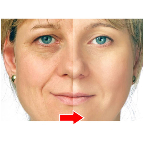 Remove your wrinkles and look younger | Best Wr