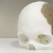 Dude Has 75 Percent of His Skull Replaced By 3D-Printed Replica | 21st Century Innovative Technologies and Developments as also discoveries, curiosity ( insolite)... | Scoop.it