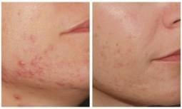 Cura acne, un rimedio definitivo e che non lascia cicatrici | Salute, benessere,stare bene | Scoop.it