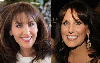 Latest Robin Mcgraw Plastic Surgery Before An