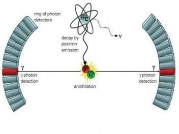 How Anti-matter is Used in Medicine :: Physics Tuition | Atomic Energy Research | Scoop.it