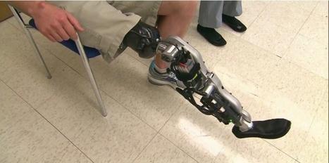 VIDEO. Une jambe bionique qui lit dans le cerveau   Human Nature  ,Brain and Cognitive Sciences &Singularity   Scoop.it