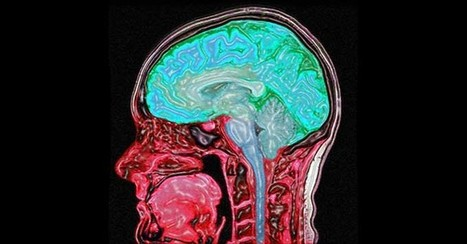 What Does Sleep Deprivation Actually Do To The Brain?   iScience Teacher   Scoop.it