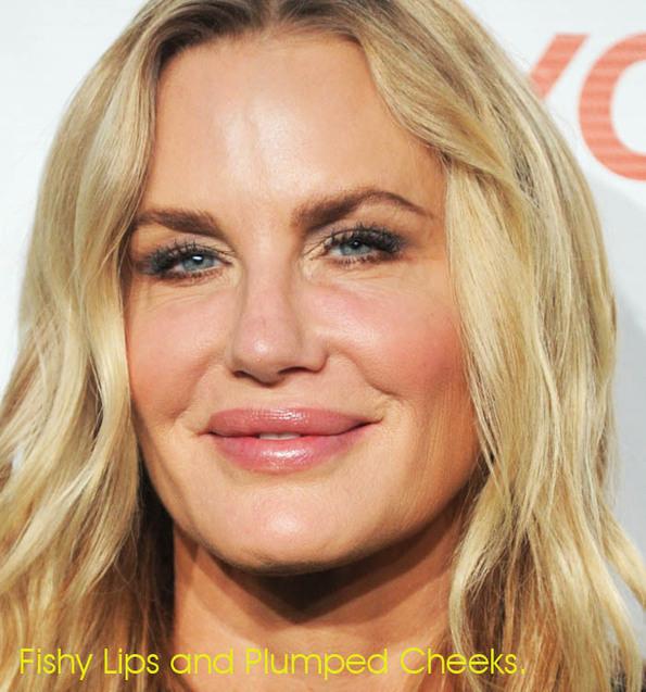 10 worst celebrity surgery
