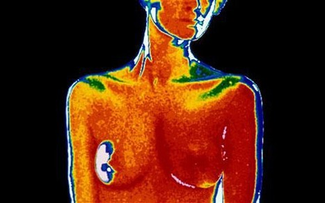 Breast-cancer test can't be ignored - The National | Breast Cancer News | Scoop.it