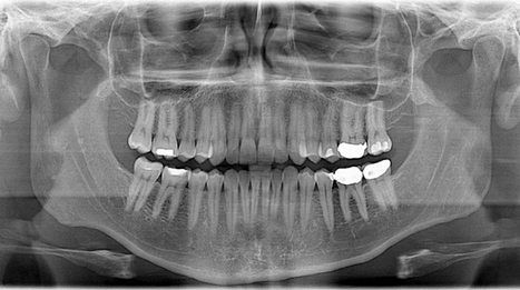 Dentists won't have to perform the root canals we all fear for much longer   Science!   Geek.com   Gadgets - Hightech   Scoop.it