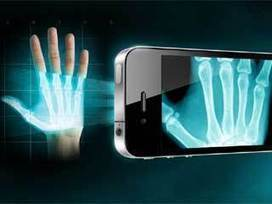 Technology News: X ray app for android smartphones | Technology News | Scoop.it