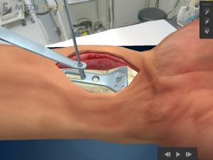 New free iPad medical app shows future of surgical patient education | Doctor en Medicina | Scoop.it