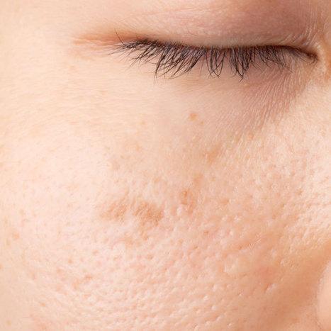 Eliminare Macchie del Viso - Eliminarle le macchie sulla pelle - Dr Mazzi   Medicina estetica   Scoop.it