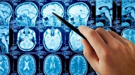 New study suggests aging has little impact on brain function   Longevity science   Scoop.it