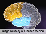 Acute Hypoglycemia Impairs Executive Cognitive Function --Doctors Lounge | diabetes and more | Scoop.it
