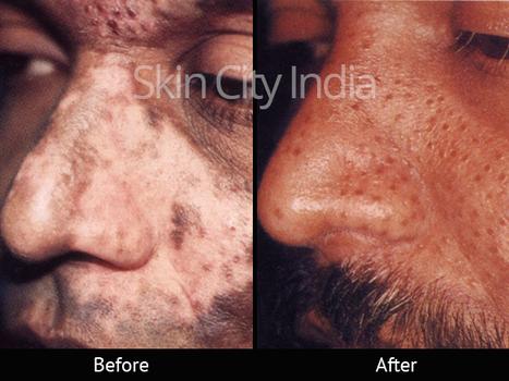 Skin City India Vitiligo Treatment Before Aft