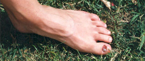 Footcare for the Woman runner by Cassandra Davis | Running Information | Scoop.it