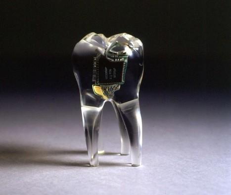 Top 10 Implantable #Wearables Soon To Be In Your Body #digitalhealth | Social Media, TIC y Salud | Scoop.it
