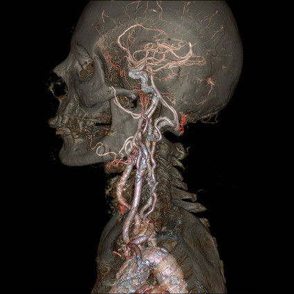 Gorgeous and creepy GIFs of guts, brains and bones from GE's new body scanner   NGSS Resources   Scoop.it