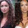 Celebrity Plastic Surgery Before and After