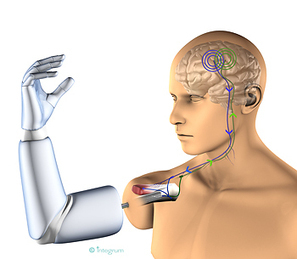 A novel thought-controlled prosthesis for amputees | KurzweilAI | Knowmads, Infocology of the future | Scoop.it
