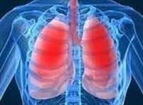 ASTHME : Bloquer ADAM pour éviter les crises | Scientific Innovations in Biology | Scoop.it