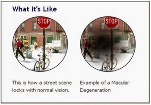 Macular Degeneration | Urgent Care Clinic Houston | Scoop.it
