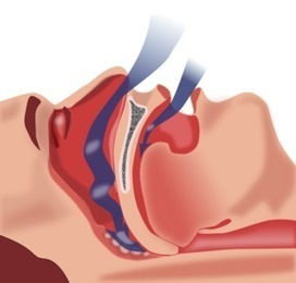 How Sleep Apnea Causes Biochemical Havoc in Your Brain   Abnormal Psychology   Scoop.it