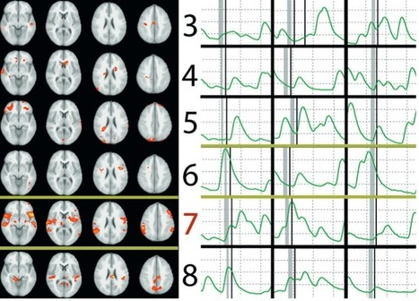 Brain scan better than polygraph in spotting lies | KurzweilAI | Science And Wonder | Scoop.it