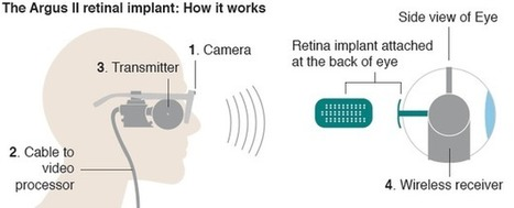 Ten people to get NHS bionic eyes - BBC News | The future of medicine and health | Scoop.it