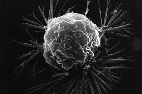Triple-negative breast cancer increased risk for local recurrence | Hematology Oncology | Breast Cancer News | Scoop.it