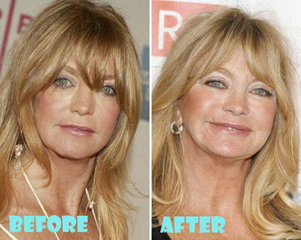 Goldie Hawn Plastic Surgery Before and After | ...