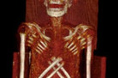 Ancient Egyptian Mummy Suffered Rare and Painful Disease | Cultural History | Scoop.it