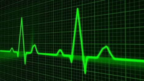 Artificial Intelligence Can Now Predict Heart Failure | COMPUTATIONAL THINKING and CYBERLEARNING | Scoop.it