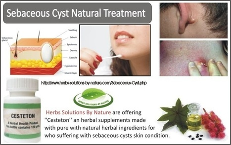 Sebaceous Cyst Natural Treatment' in Herbs Solutions By