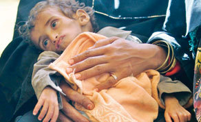 Warning on Yemen child hunger | Coveting Freedom | Scoop.it