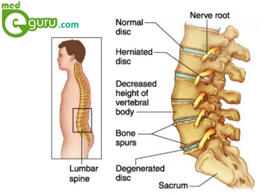 Vertebral Disk Anatomy Images - human body anatomy