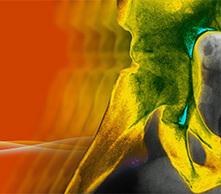 Medical Insiders: Multidisciplinary Perspectives on Emerging Biosimilars in Rheumatoid Arthritis (Med-IQ) | CME-CPD | Scoop.it