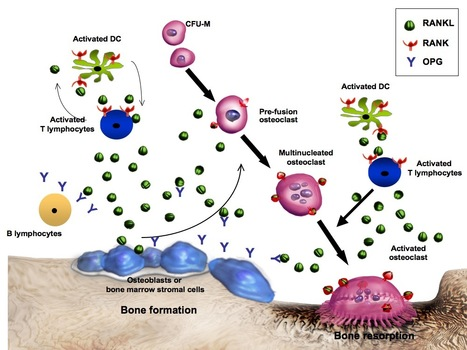 Denosumab Xgeva Amgen Cancer Fda Review Amp A