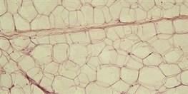 Temperature-Sensing Fat Cells - Scientist | Environmental Sensors | Scoop.it