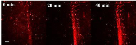 Self-powered nanoparticles instantly deliver healing drugs to bones | Amazing Science | Scoop.it