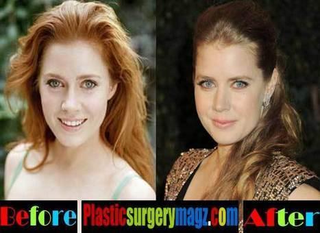 Celebrity Plastic Surgery News   Scoop it